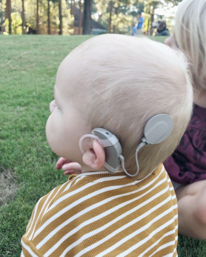 Dempsey's Cochlear Implants are ON! Activation Day + FAQs