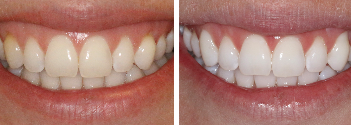 My KöR Teeth Whitening Experience